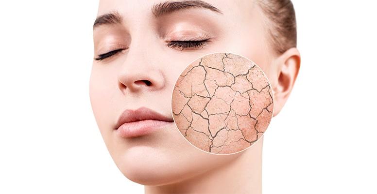 Humectante para la piel